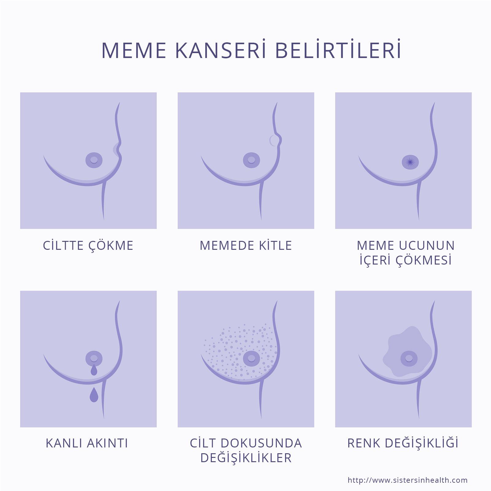 Meme kanseri belirtileri - Prof. Dr. Abut Kebudi