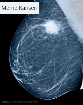 Meme kanseri mammografi görüntüsü