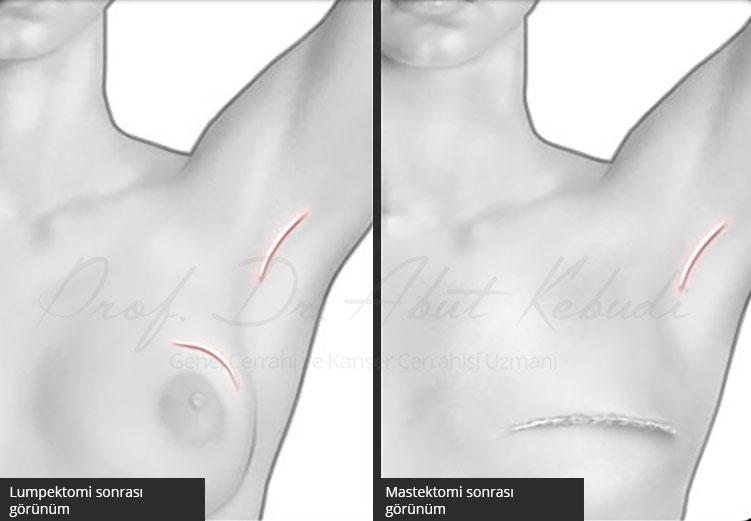 Lumpektomi ve Mastektomi