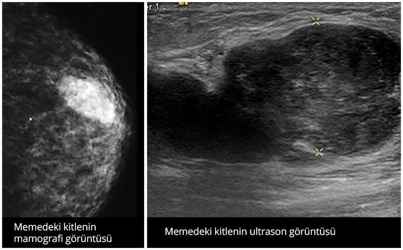 Mamografi ultrason