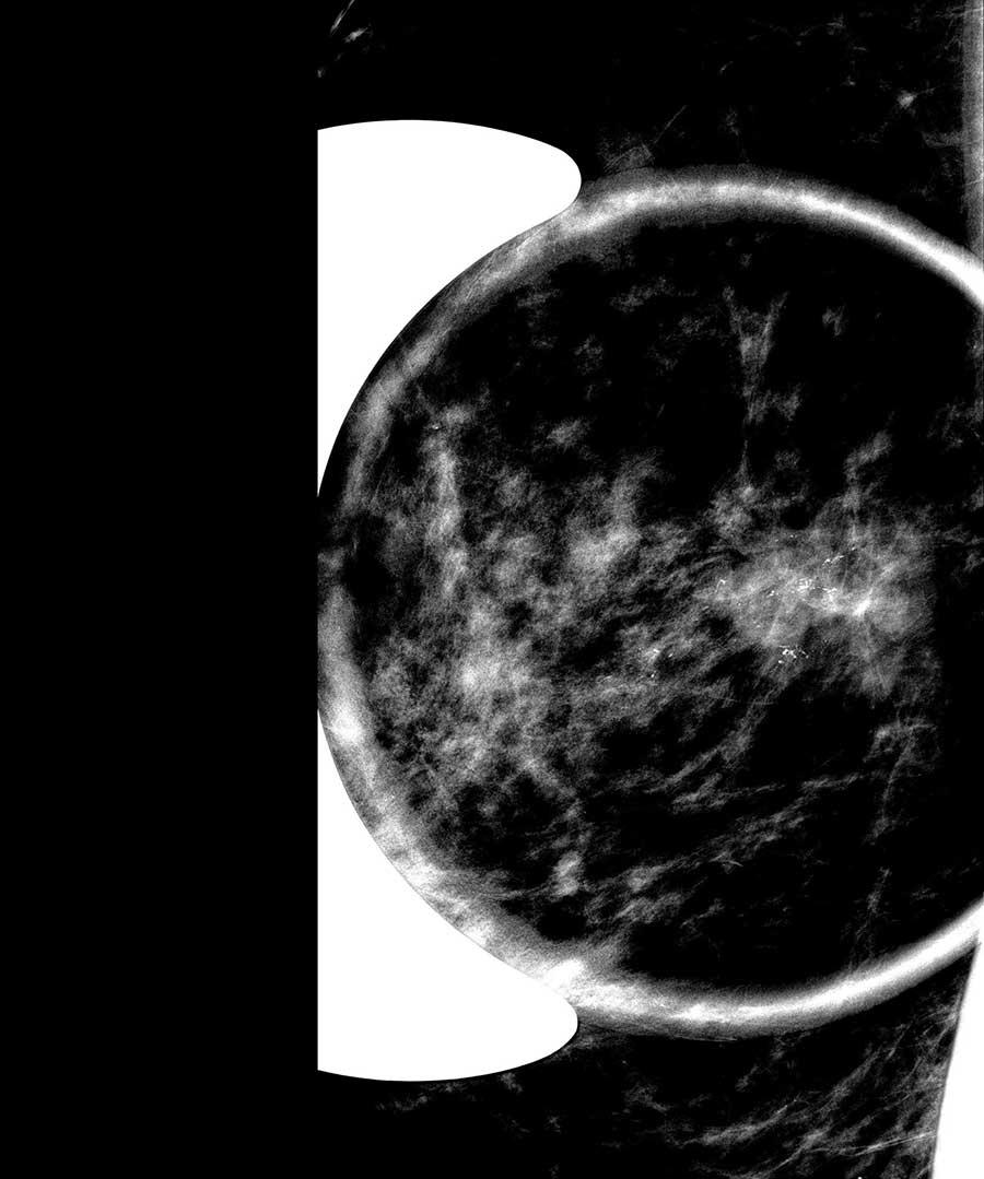 Memede şüpheli mikrokalsifikasyonların (kireçlenmeler) büyütme mamografisi ile incelenmesi