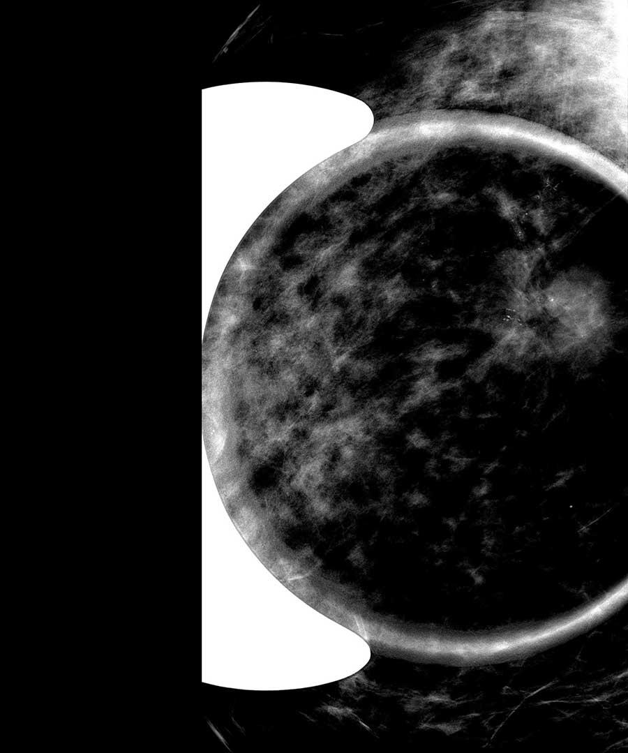 Memede şüpheli mikrokalsifikasyonların büyütme mamografisi ile işaretlenmesi