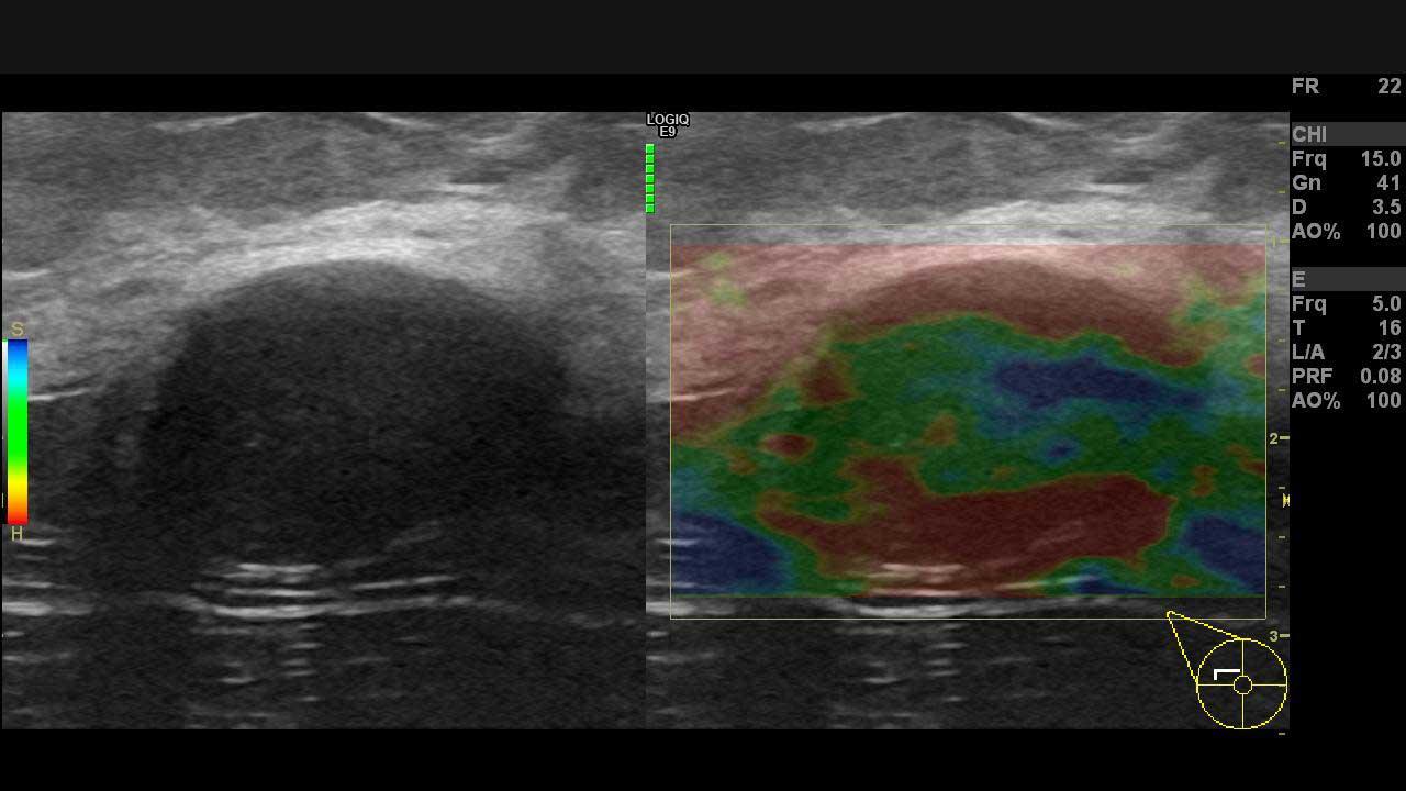 Memede ultrason ve renkli doppler ultrason ile saptanan fibroadenom