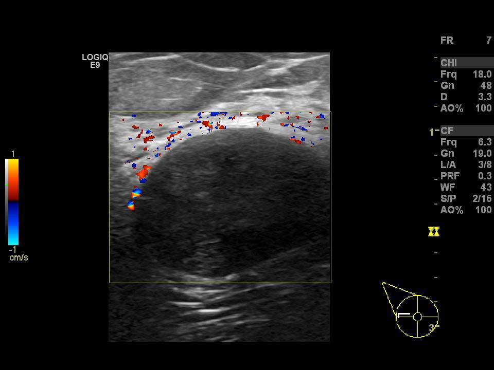 Memede ultrasonla görüntülenen fibroadenom