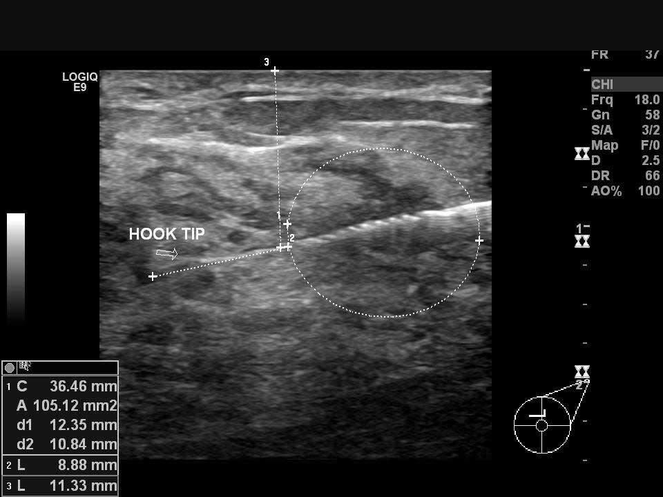 Sol memedeki kanser odağının ultrason kılavuzluğunda hook (çengel) ile işaretlenmesi
