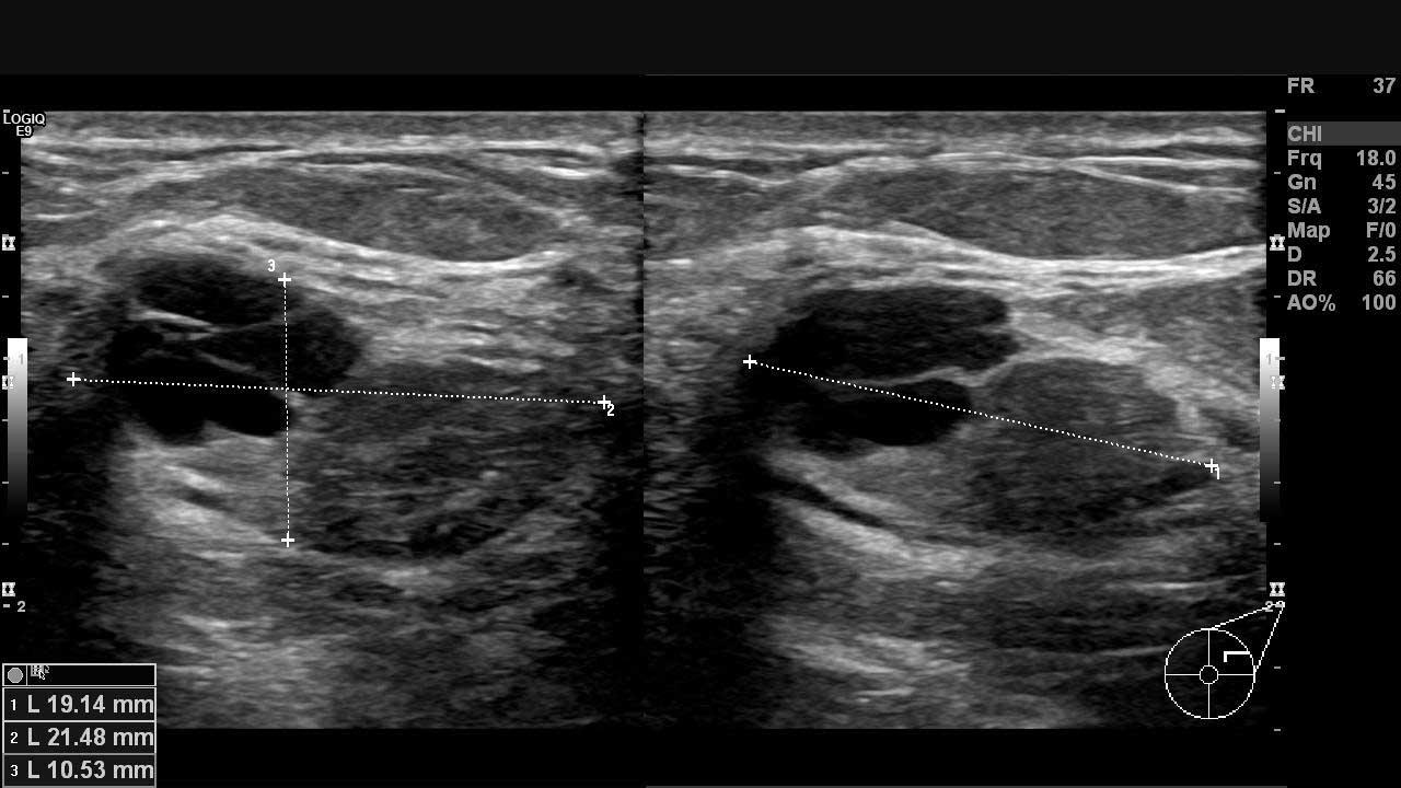 Sol memede ultrasonla gözlenen iyi huylu olabilecek yapılar