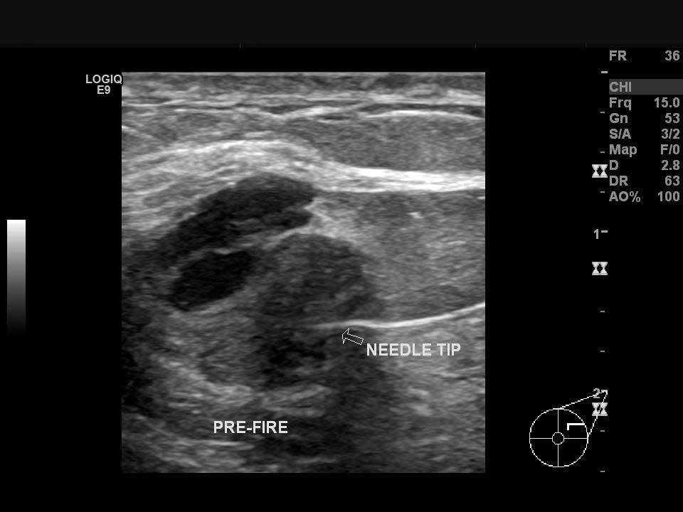 Sol memedeki odaktan ultrason kılavuzluğunda tru-cut biyopsi (kalın iğne biyopsisi) yapılması